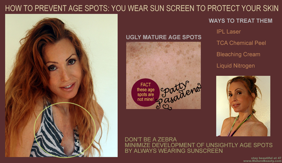 laser skin treatment, laser treatments, anti aging lasers, remove sun spots, treat age spots, IPL treatments, brown spot removal, skin bleaching creams, chemical peels for age spots, liver spot removal, sun damage, age spots, brown spots, liver spots