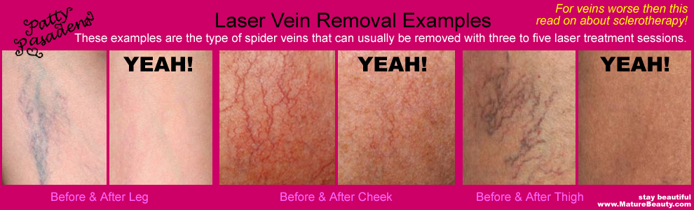 Laser Vein Removal, Vein Laser, Laser Vain, Spider Vein Removal, Spider Vein Laser, Spider Vein Treatment, How to get rid of Spider Veins, Broken Capillaries on face