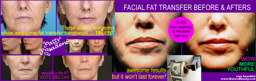 fat grafting, facial fat rejuvenation, fat transfer, free fat transfer, micro lip injection, fat injections, harvesting fat, cosmetic surgery fat, plastic surgery your own fat, injecting your own fat into your face, reusing your fat, plumping a skeleton like face, aging face and what to do about it, help my face looks haggard, haggard face, thin face, losing too much weight in the face