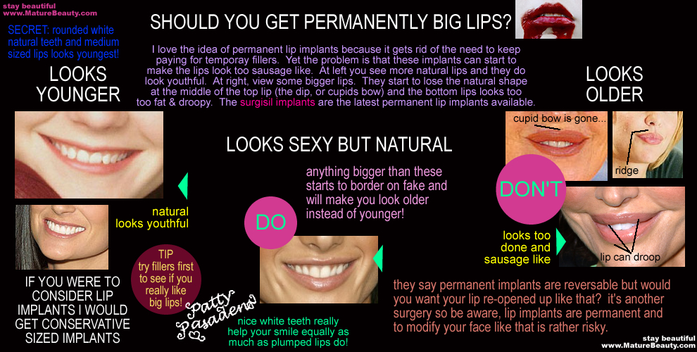 Permanent lip implants, lip implant complications, surgisil, do lip implants look good?