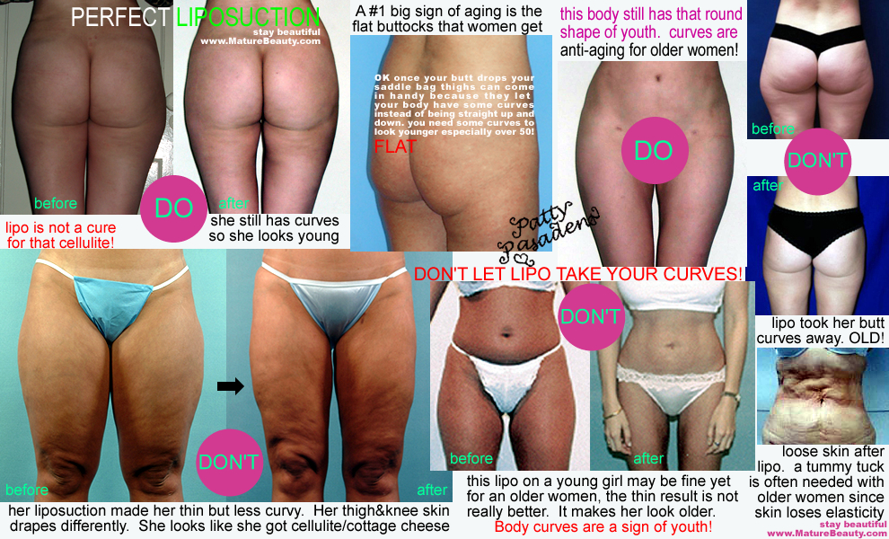 liposuction examples, liposuction before and after pictures, liposuction photographs, lipo suction before after, before after lipo examples. lipo pics, lipo photos, liposuction photographs, liposuction and cellulite, does liposuction cause cellulite, does liposuction cure cellulite, how to get rid of cellulite, should i get lipo, lipo on women over forty, lipo and tummy tuck, who is a good condidate for lipo, can liposuction help cellulite, cellulite after lipo, what is cellulite, how to cure cellulite, jiggly legs older women, dimply leg fat, saggy legs, flat bottom, droopy bottom, buttocks enhancement surgery, how to hide a droopy bottom, liposuction los angeles, tumescent liposuction los angeles, beverly hills body